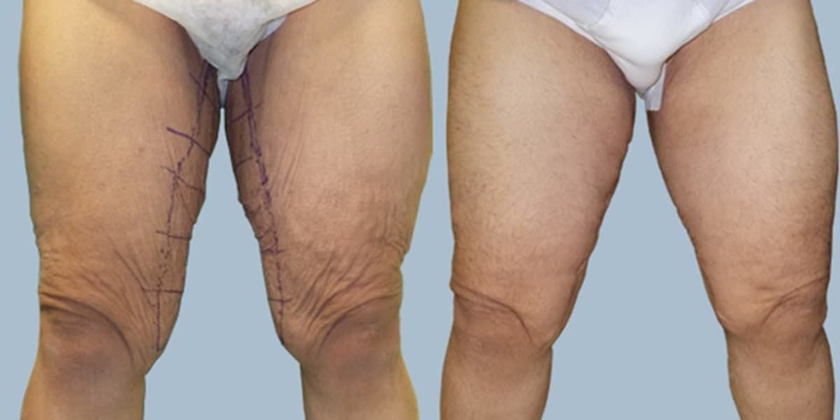Thigh Plastic Surgery Before And After photo - 1