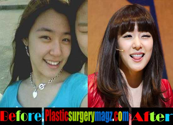 Tiffany Snsd Plastic Surgery Before And After photo - 1