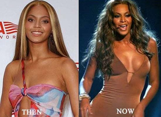 Tina Knowles Before Plastic Surgery photo - 1