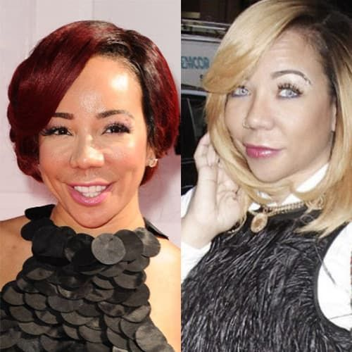 Tiny Harris Plastic Surgery Before And After photo - 1
