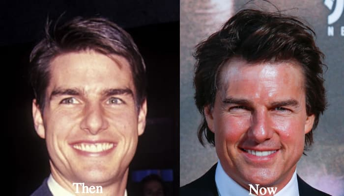 Tom Cruise Before Plastic Surgery photo - 1