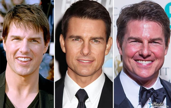 Tom Cruise Plastic Surgery Before And After photo - 1