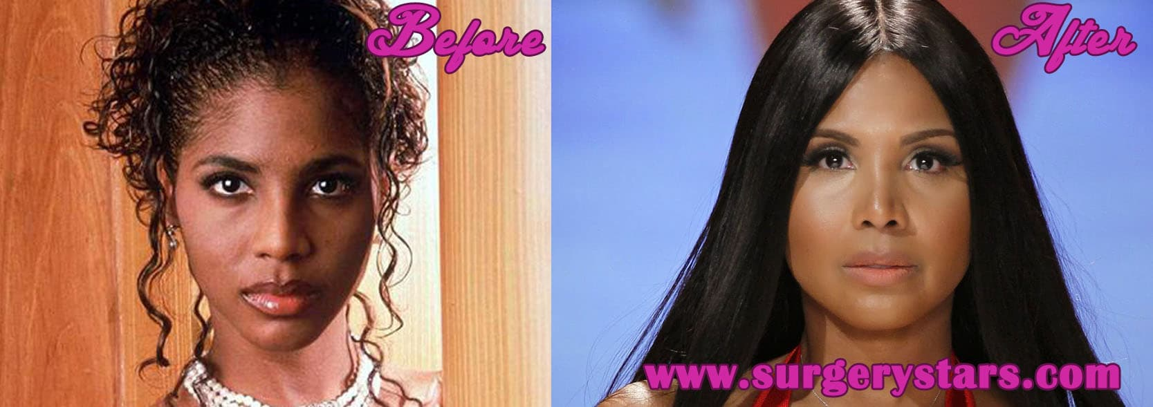 Toni Braxton Plastic Surgery Before And After photo - 1