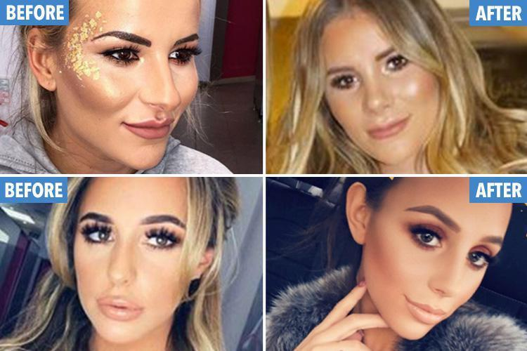 Towie Plastic Surgery Before And After photo - 1