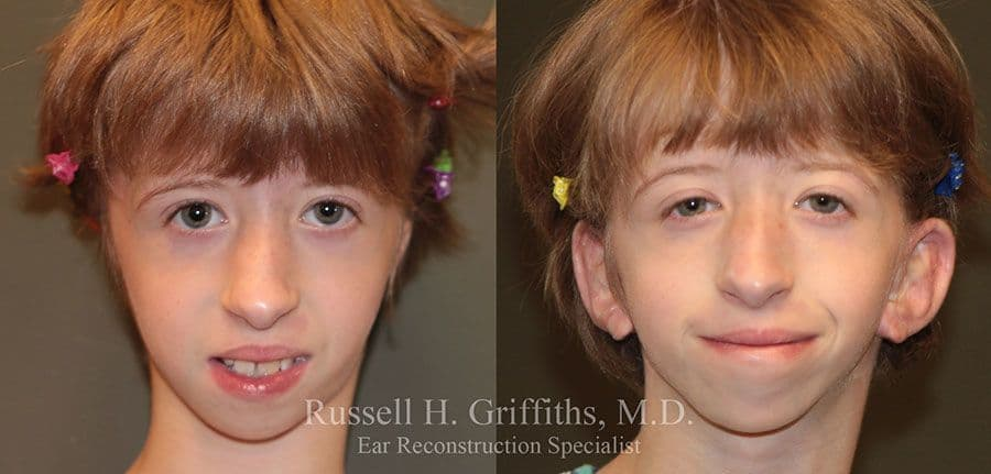 Treacher Collins Plastic Surgery Before And After photo - 1