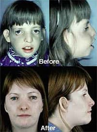 Treacher Collins Syndrome Pictures Before And After Plastic Surgery photo - 1