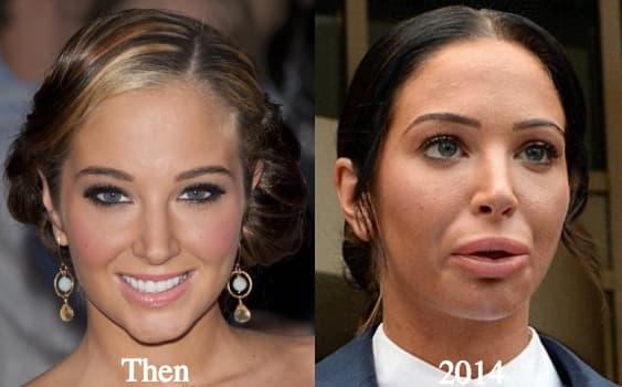 Tulisa Before And After Plastic Surgery photo - 1