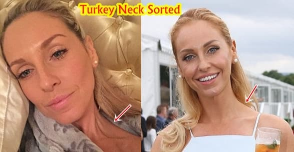 Turkey Neck Plastic Surgery Before After photo - 1