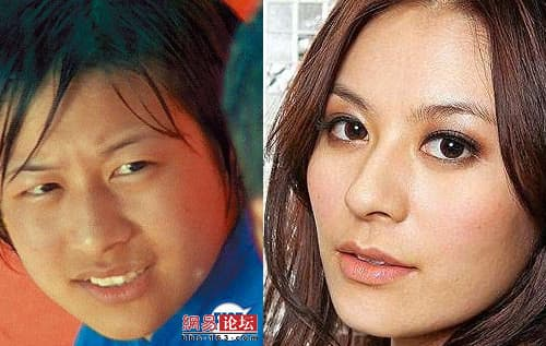 Tvb Actress Plastic Surgery Before And After photo - 1