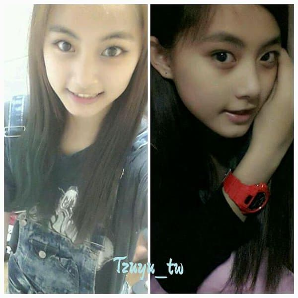 Tzuyu Plastic Surgery Before And After photo - 1