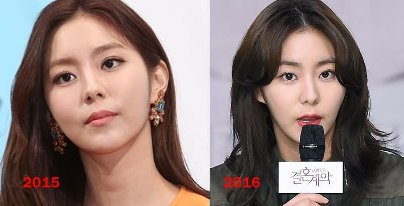 Uee Plastic Surgery Before And After photo - 1