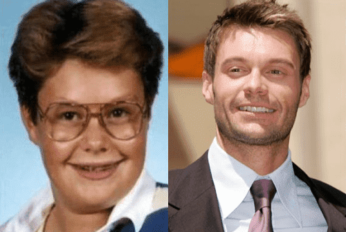 Ugly Celebrities Before Plastic Surgery Boys photo - 1