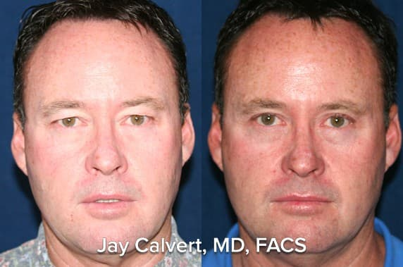 Under Eye Plastic Surgery Before And After photo - 1