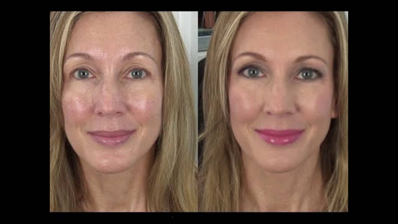 Under Eye Wrinkle Plastic Surgery Before And After photo - 1
