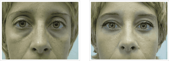 Upper Eyelid Before And After Plastic Surgery Pics photo - 1