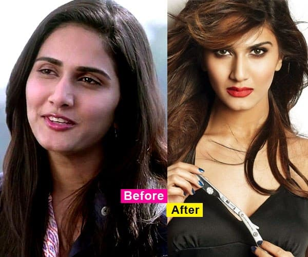 Vani Kapoor Before Plastic Surgery photo - 1