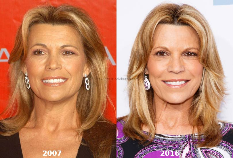 Vanna White Plastic Surgery Before After photo - 1