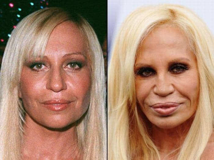 Versace Before And After Plastic Surgery photo - 1
