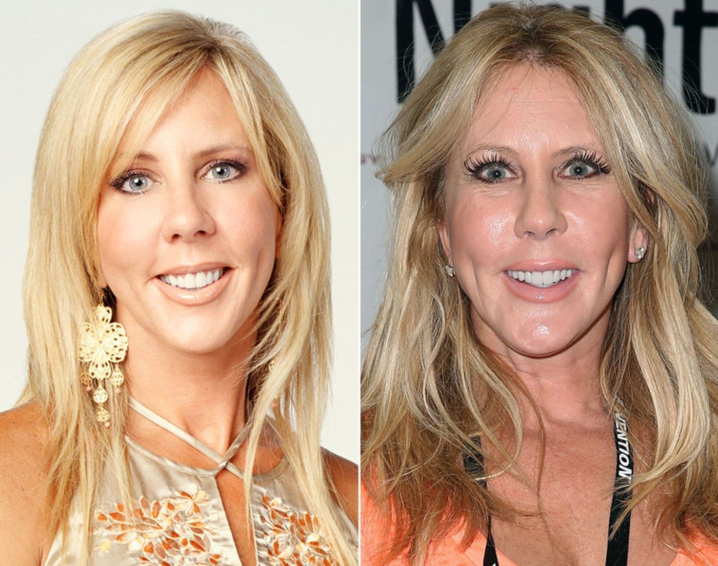 Vicki Gunderson Before Plastic Surgery photo - 1