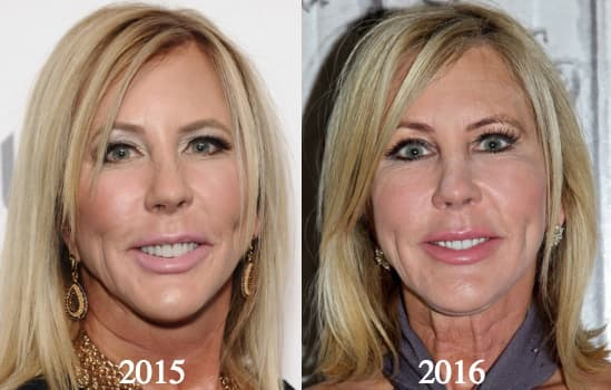 Vicki Gunvalson Before And After Plastic Surgery photo - 1