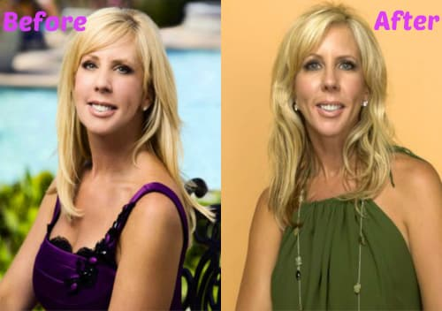 Vicki Gunvalson Plastic Surgery Before And After photo - 1