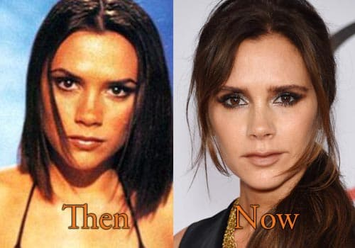 Victoria Beckham Before And After Plastic Surgery photo - 1