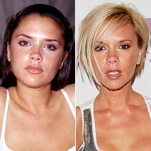Victoria Beckham Before Plastic Surgery photo - 1