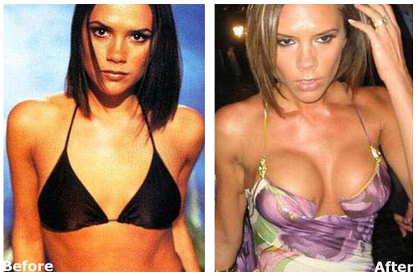 Victoria Beckham Plastic Surgery Before And After photo - 1