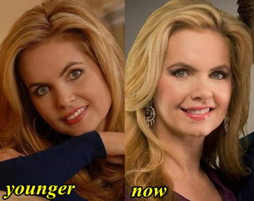 Victoria Osteen Before And After Plastic Surgery photo - 1