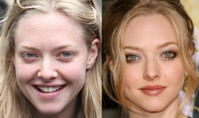 Vienna Plastic Surgery Before And After photo - 1