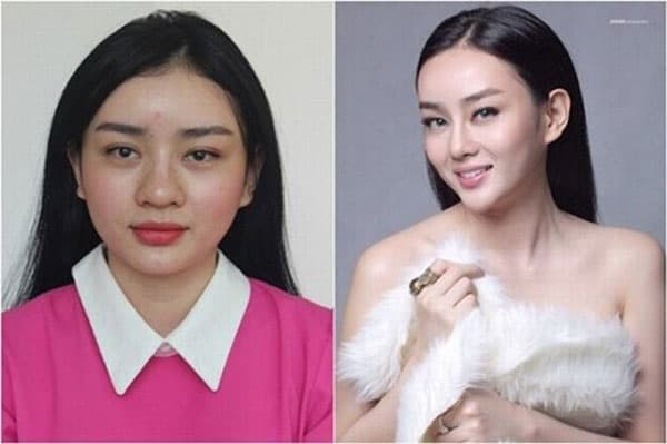 Vietnamese Plastic Surgery Before And After photo - 1