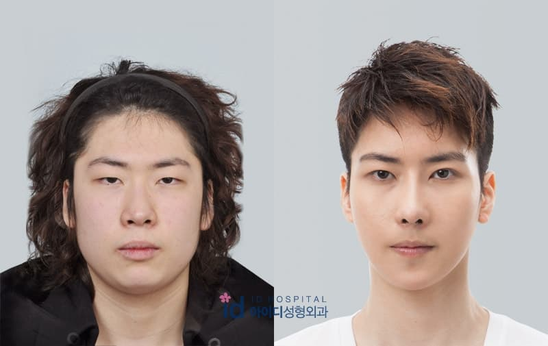 Vitamins To Take Before Plastic Surgery photo - 1