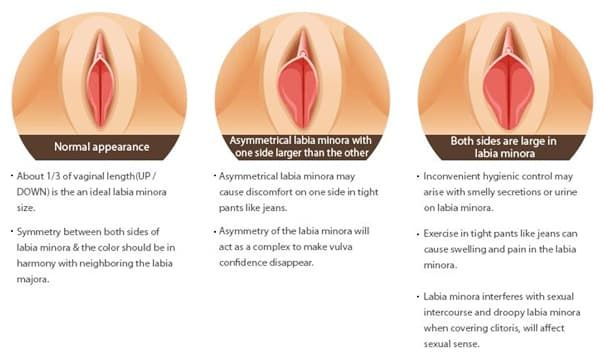 Vulva Plastic Surgery Before And After photo - 1