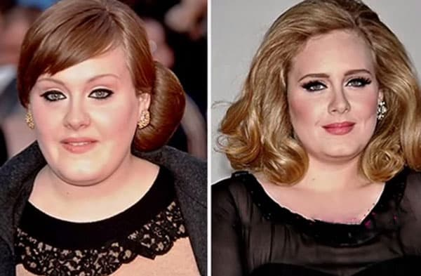 Want Plastic Surgery Before Becoming A Singer photo - 1