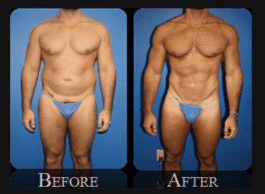 Weight Loss Plastic Surgery Before After photo - 1