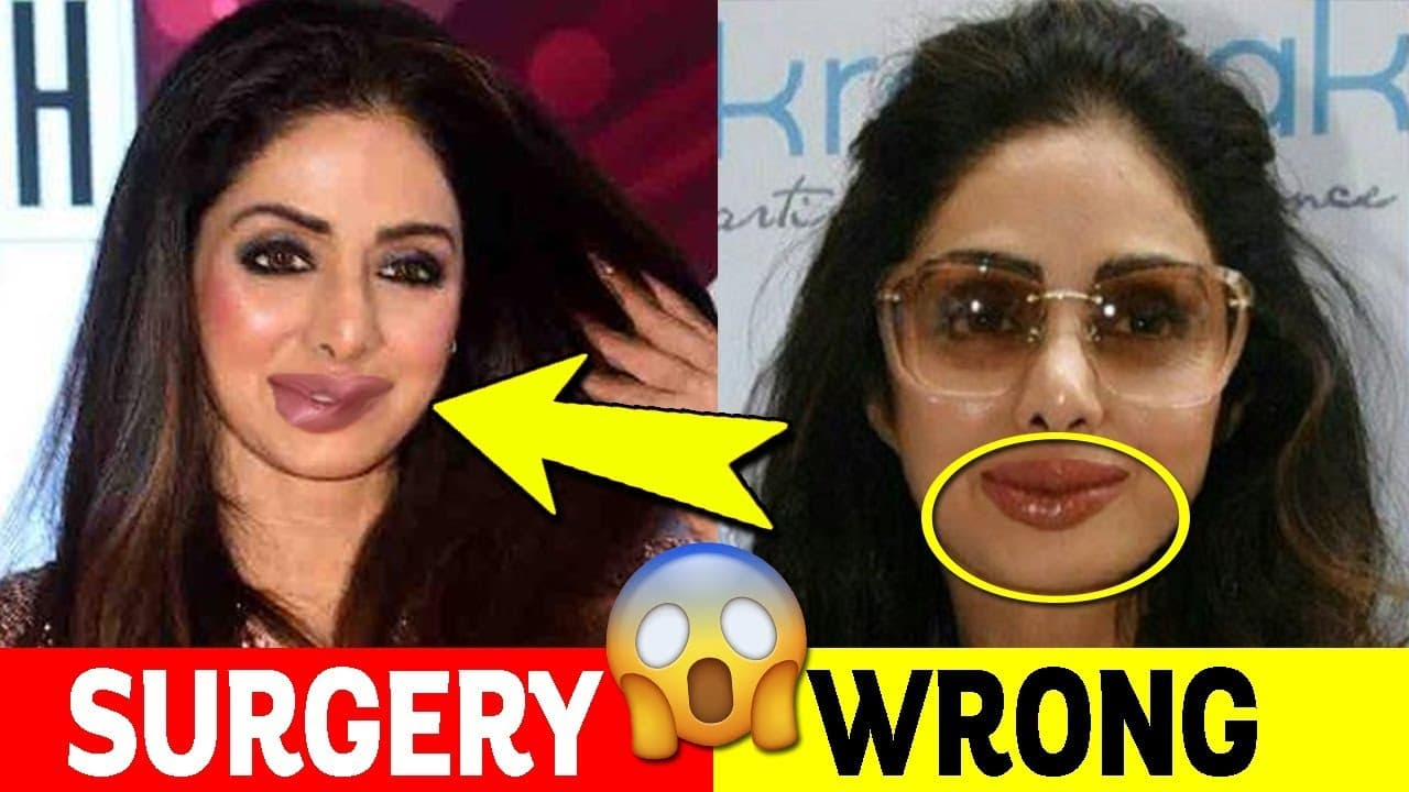 Weight Loss Skin Plastic Surgery Before And After photo - 1