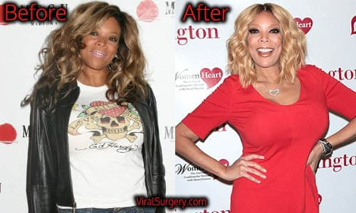 Wendy Williams Before After Plastic Surgery photo - 1
