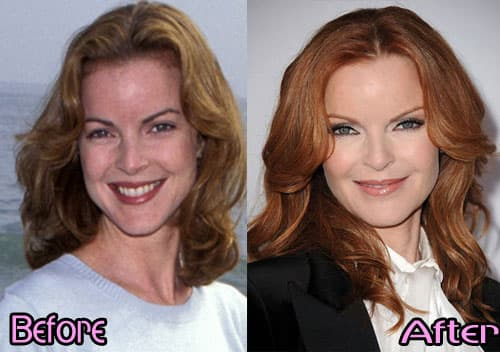 Wendy Williams Before And After Plastic Surgery Photos photo - 1
