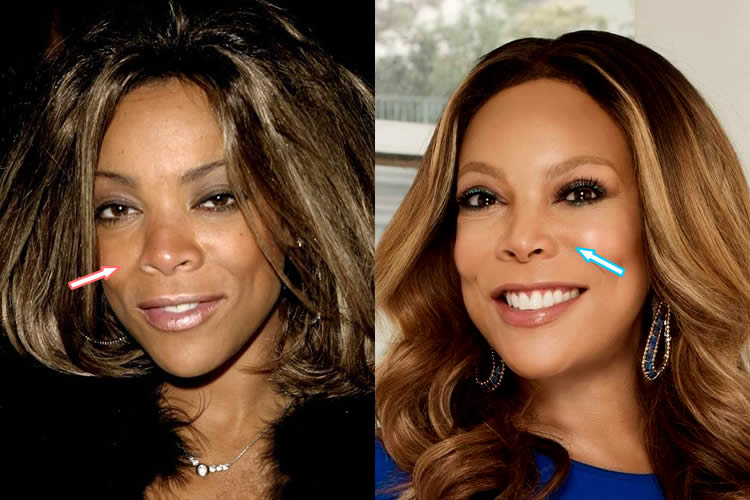 Wendy Williams Plastic Surgery Before And After photo - 1