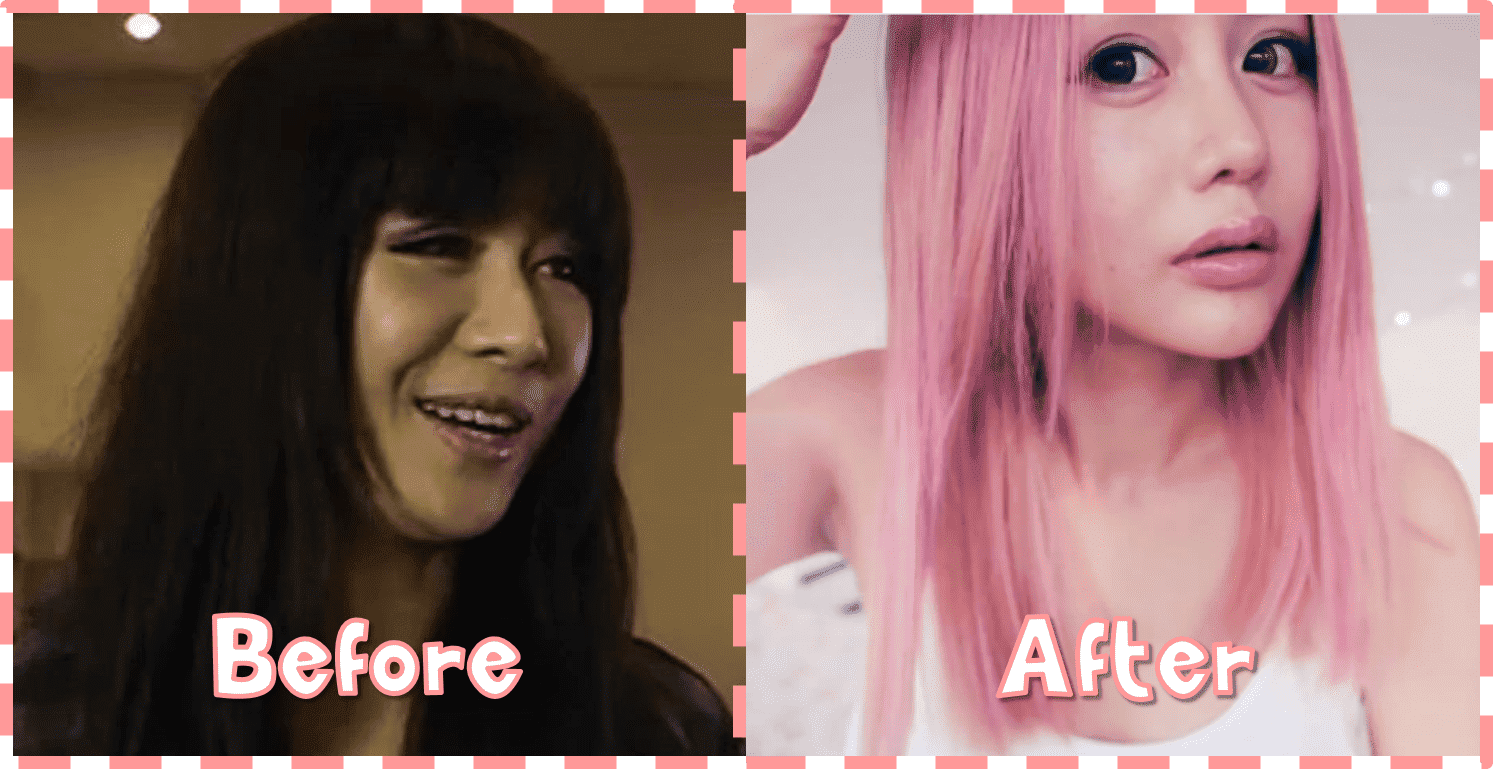 Wengie Plastic Surgery Before And After photo - 1