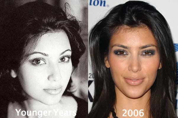 What D Id Kim Kardashian Look Like Before Plastic Surgery photo - 1