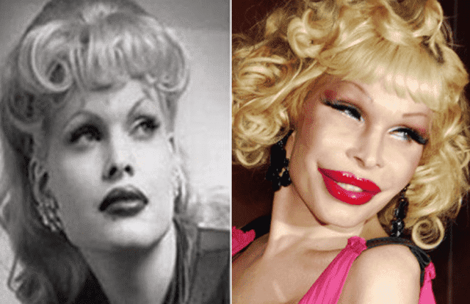 What Did Amanda Lepore Look Like Before Plastic Surgery photo - 1