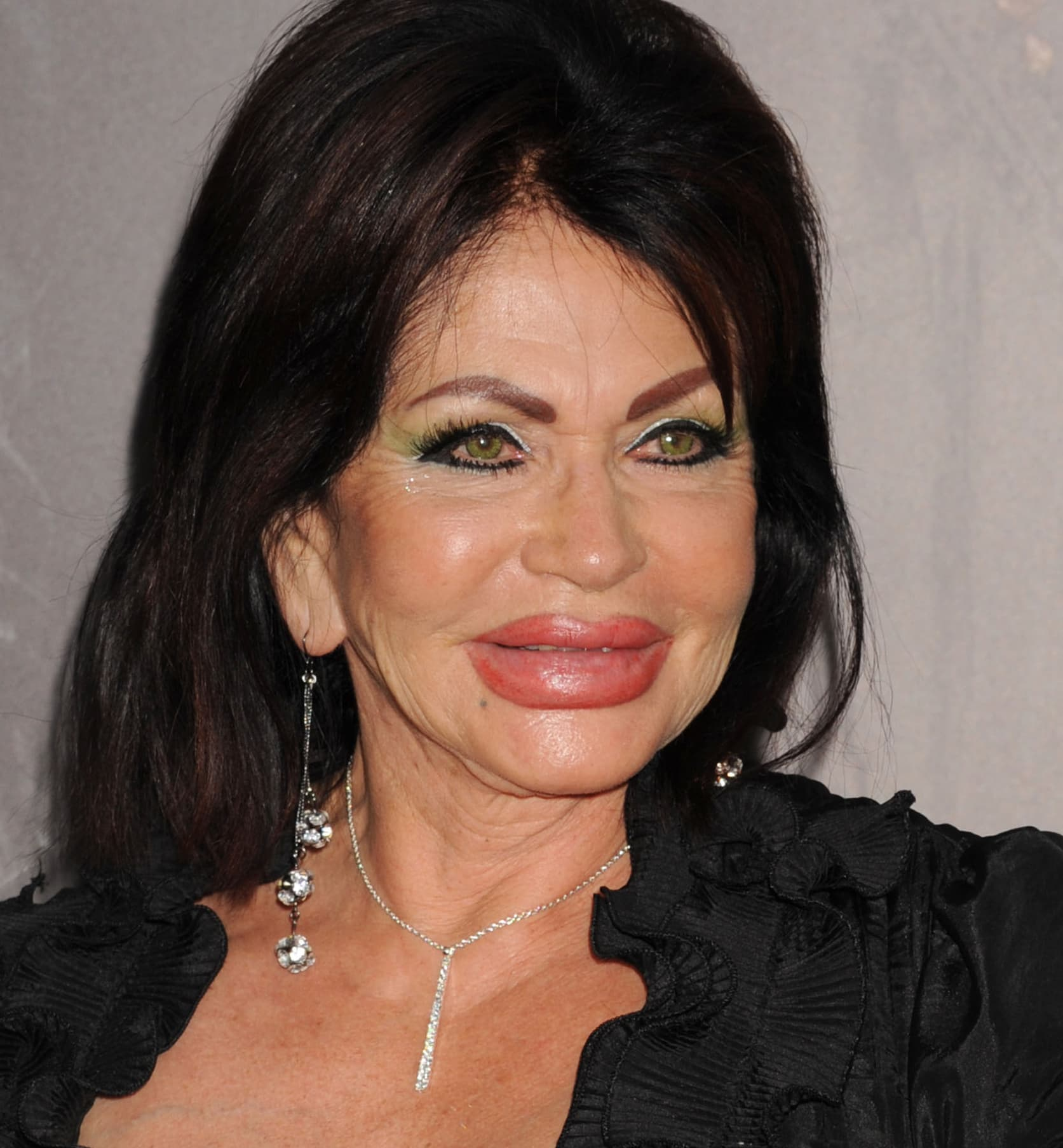 What Did Jackie Stalone Look Like Before Plastic Surgery photo - 1