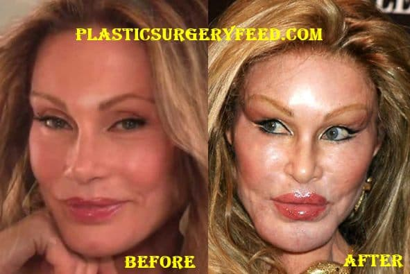 What Did Jocelyn Wildenstein Look Like Before Plastic Surgery photo - 1