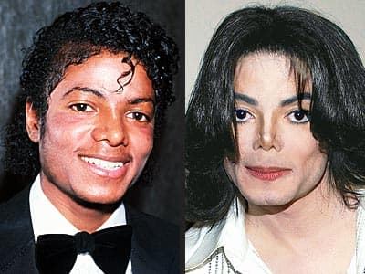What Did Michael Jackson Look Like Before Plastic Surgery When He Was White photo - 1