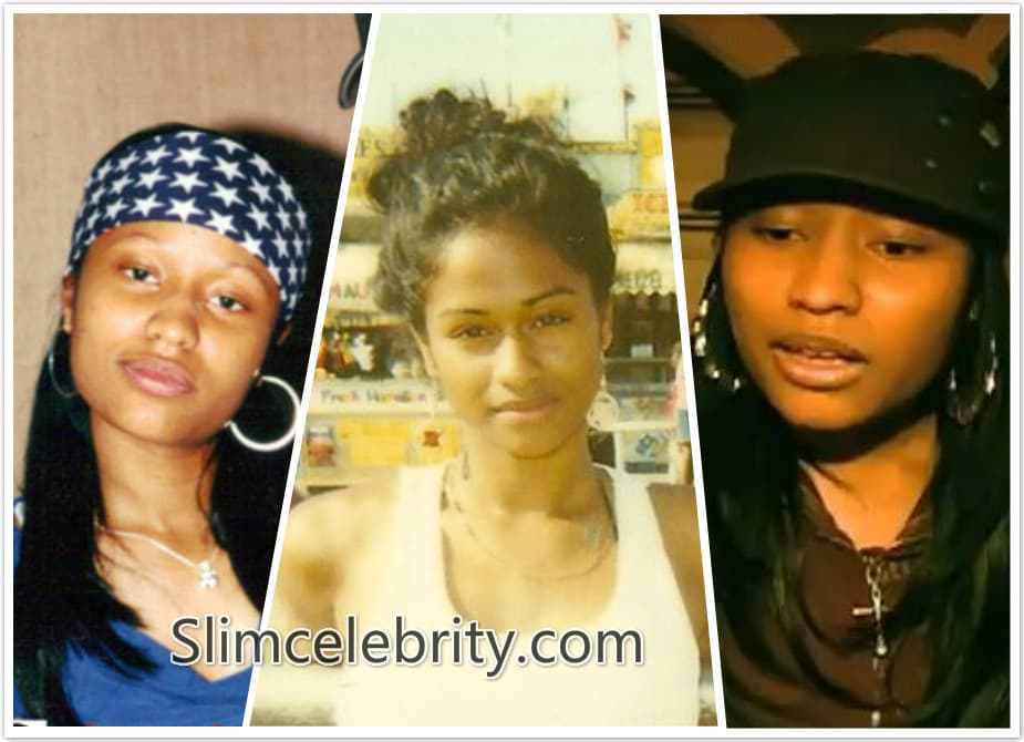 What Did Nicki Minaj Look Like Before Plastic Surgery photo - 1
