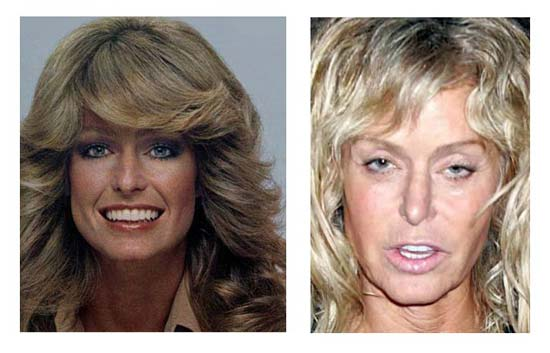 What Did Paula White Look Like Before Her Plastic Surgery photo - 1