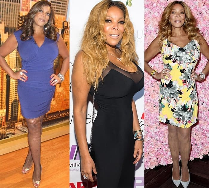 What Did Wendy Williams Look Like Before Plastic Surgery photo - 1