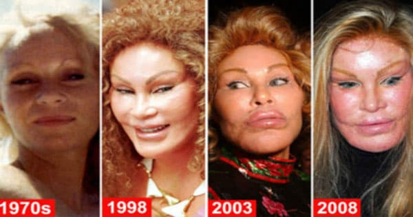What Did Wildenstein Look Like Before The Plastic Surgery photo - 1