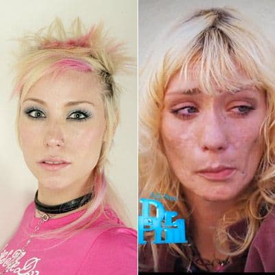 When To Stop Smoking Before Plastic Surgery photo - 1